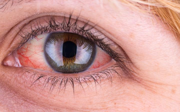 Dažniausios paraudusių akių priežastys