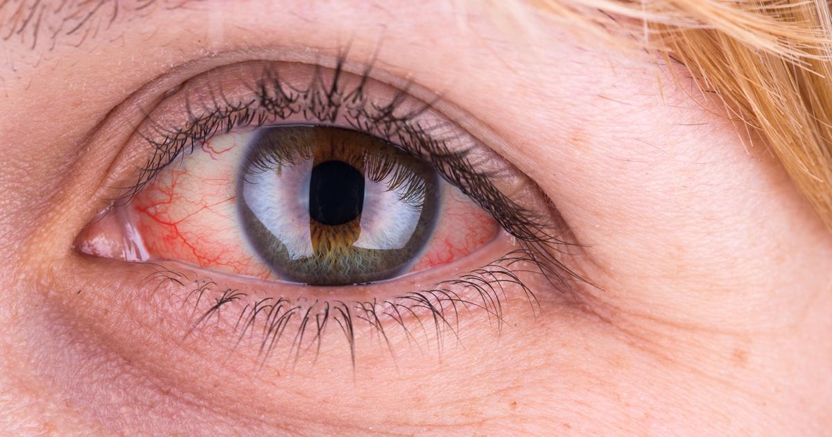 raudonos akys su hipertenzija