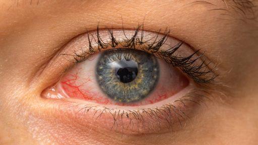 Konjunktyvitas: simptomai, priežastys ir apsisaugojimo būdai