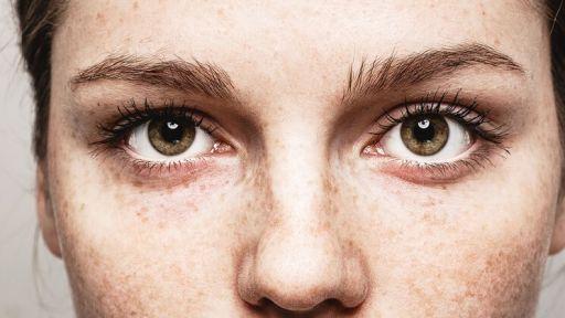 Pagrindinės trūkčiojančių akių priežastys
