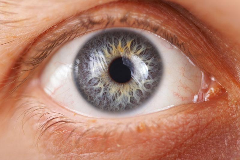Sausis – tarptautinis glaukomos mėnuo. Ką reikia žinoti apie šią ligą?