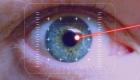 10 faktų, kurių galbūt nežinojote apie akių korekciją